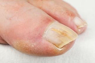 Le traitement sinegnojnaya la baguette les ongles