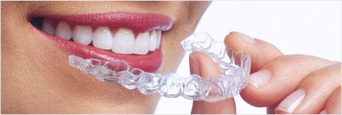 appareil dentaire