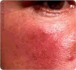 La rosacée, une maladie inflammatoire