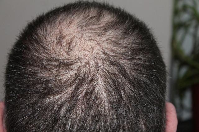 Comment lutter naturellement contre les chutes excessives de cheveux