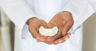 Empreinte dentaire pour prothèse dentaire