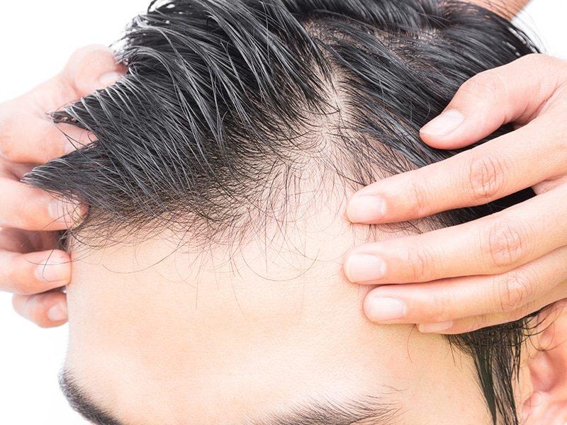 Greffe-cheveux